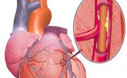 "Diabetes dan Penyakit Jantung Coroner: ""The Common Soil"" Hypothesis"